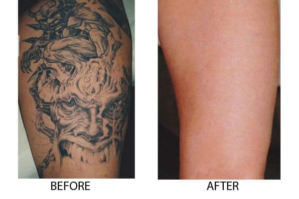 Tattoo Removal Laser Dr Al Rustom Skin Laser Centre